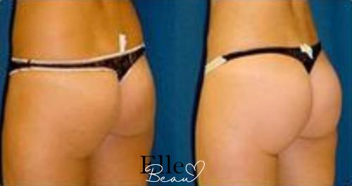 Beauelle brazillian butt