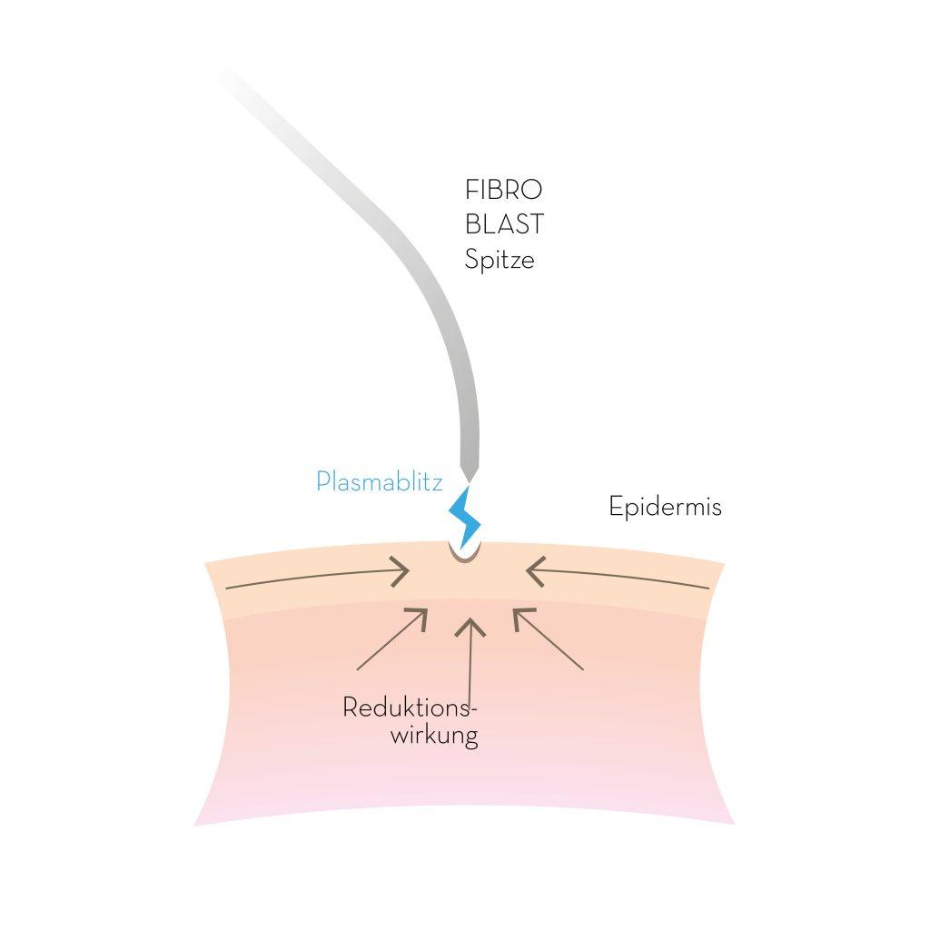 PB-FIBROBLAST-Illustration_01